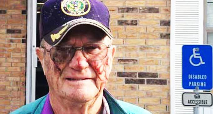 Police Severly Beat 80-Year-Old Man Who Was Complaining About Utility Crew On His Property