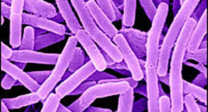 Oops. Anthrax Distribution in U.S.A. Shockingly Common