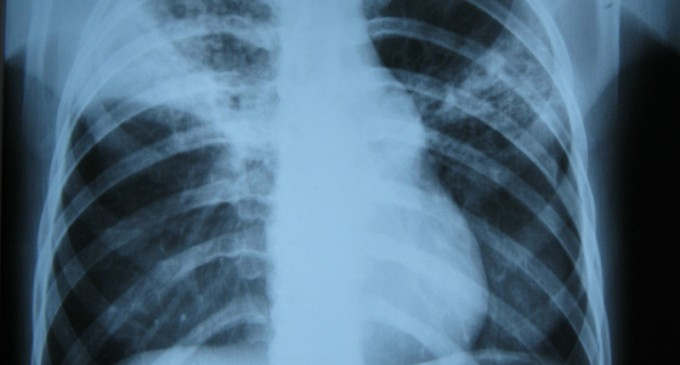 Idaho Becomes Seventh State with Confirmed TB Brought in by Migrants
