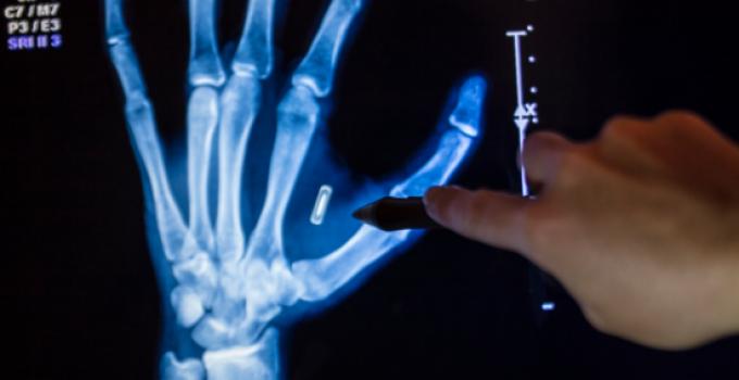 microchip_hand